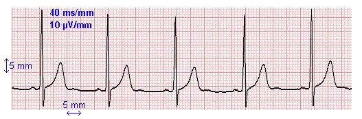 Le diagnostic m dical electrocardiogramme forum physique - Methode simple pour mesurer terre ...
